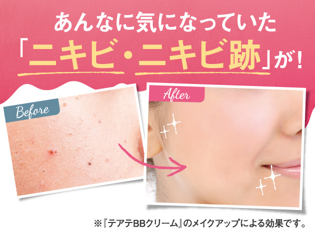 ニキビ化粧水「テアテ(teate)」をほぼ無料でお試しする方法をご紹介!